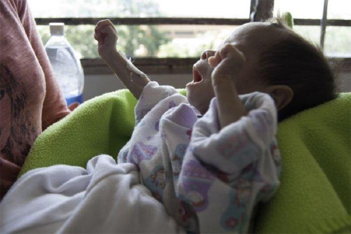 desnutrición-dos-en-venezuela-696x464
